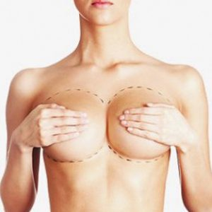 nye bryster